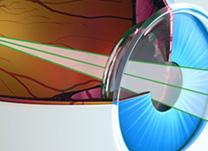O que é cirurgia refrativa?