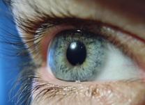 Tratamento para diabetes e glaucoma: Fotocoagulação a laser