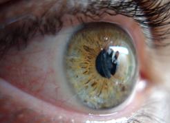 Como evitar olho seco?