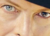 Heterocromia – Diferença da cor dos olhos