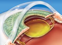 O que é uma Lente Intra-Ocular?
