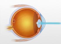 Correção Visual a Laser personalizada para o seu astigmatismo.